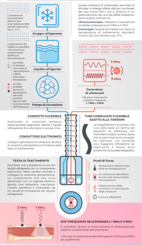 Infografica Crioultrasuoni